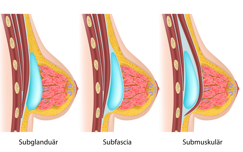 Obwisla die Brust nach der Erhöhung