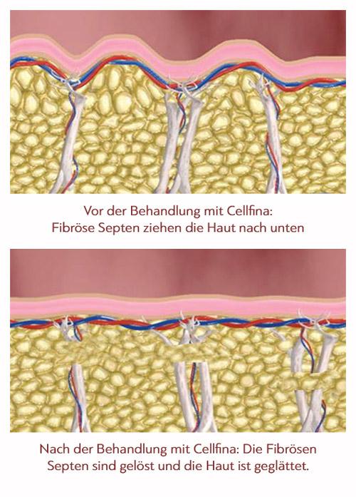 Cellulite an der Ursache bekämpfen mit Cellfina