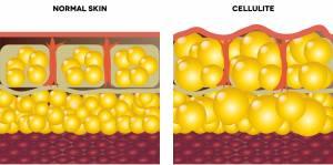 Wie entsteht Cellulite?