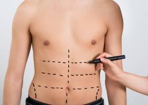Fettabsaugung / Liposuktion am bauch fr Männer