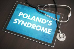 Poland Syndrom behandeln in Köln